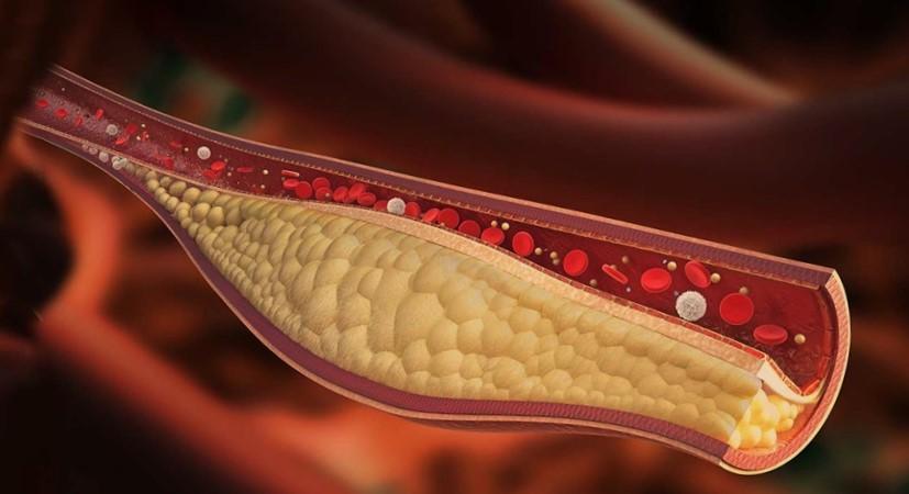 Diagnosakolesterol