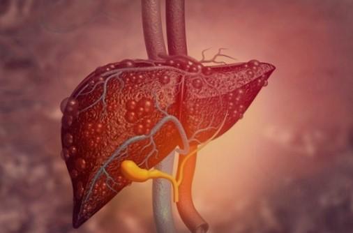 Hepatitis autoimun