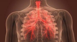 Diagnosa bronkitis