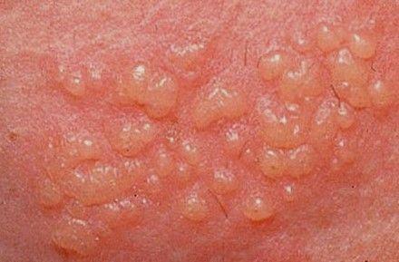 Gejala pada herpes