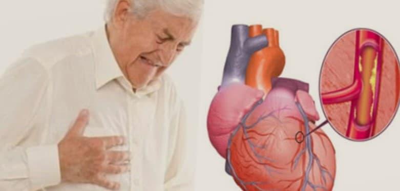 Diagnosa penyakit jantung