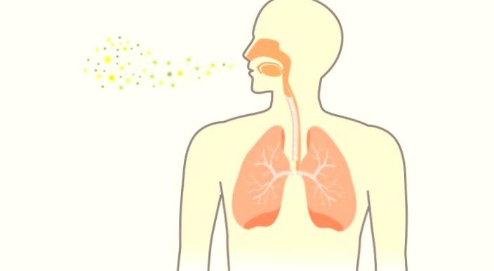 pneumonia di paru paru
