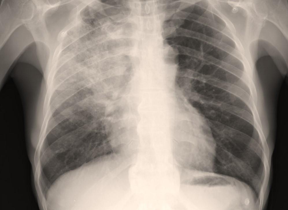 Infeksi di Paru-Paru pneumonia