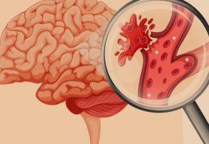 Diagnosis stroke