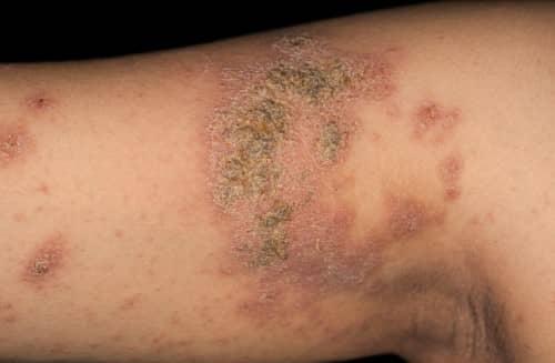 dermatitis atopik liver adalah