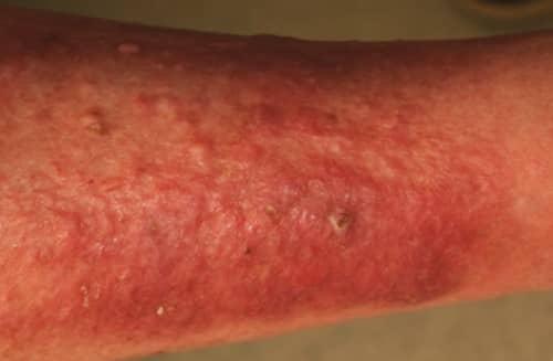 apa itu Penyakit dermatitis atopik