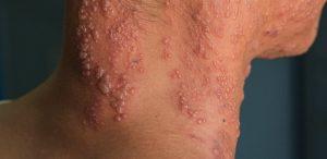 apa itu herpes zoster