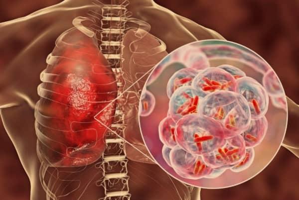 apa itu Tuberkulosis