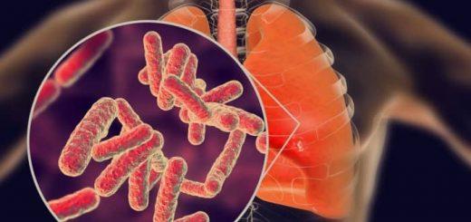 TBC (Tuberkulosis)