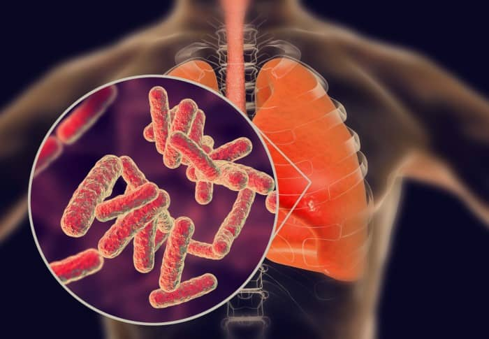 penyakit Tuberkulosis