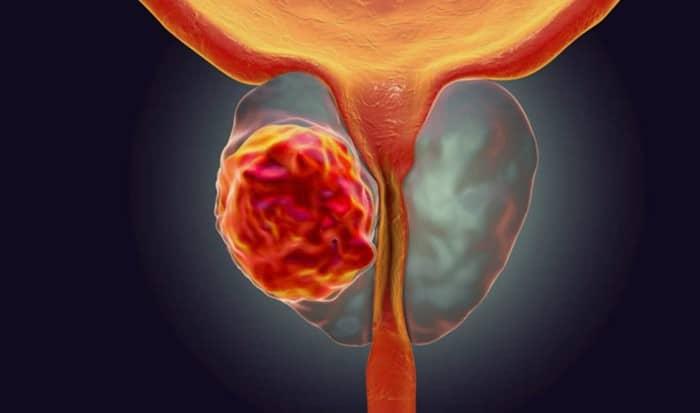 apa itu Kanker Prostat