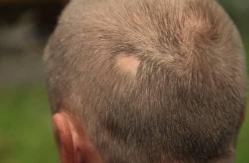 Gejala alopecia area