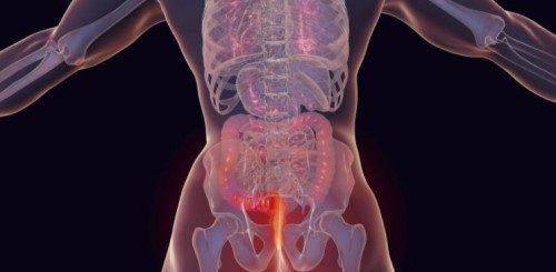 Kanker anus