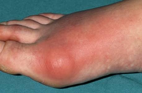 Gejala gout