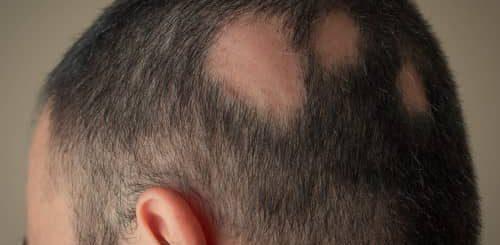 Pencegahan rambut rontok