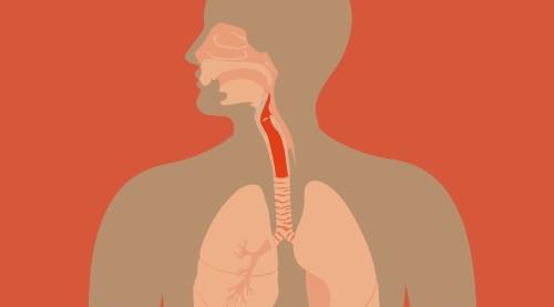 Gejala laringitis