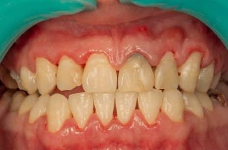 Gejala periodontitis