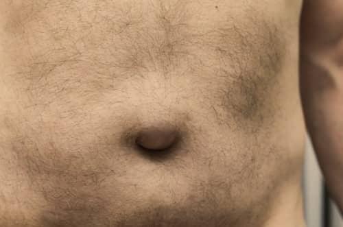 Penyebab hernia inguinalis
