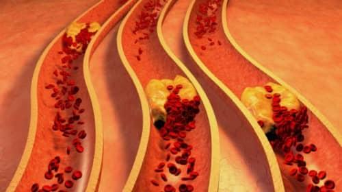 Gejala arteriosklerosis