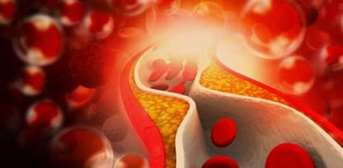 Arteriosklerosis