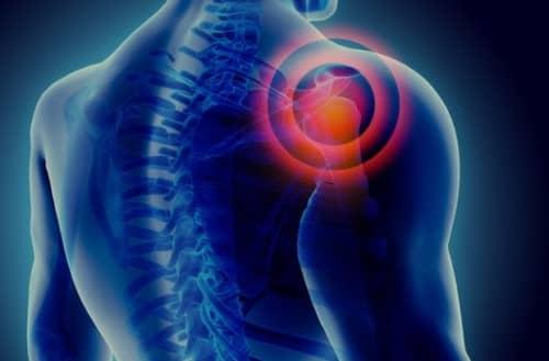 Prognosis frozen shoulder