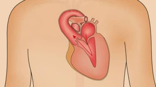 Penyebab gangguan katup jantung