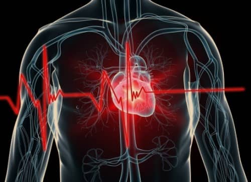 Gejala serangan jantung