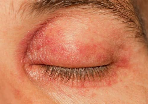 Gejala blefaritis