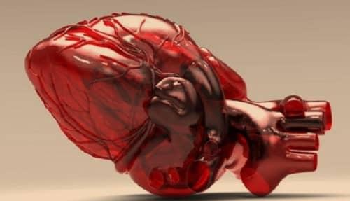 Syok Kardiogenik
