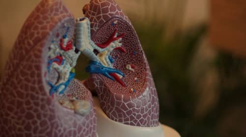 Penyebab fibrosis paru