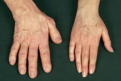 Gejala akromegali