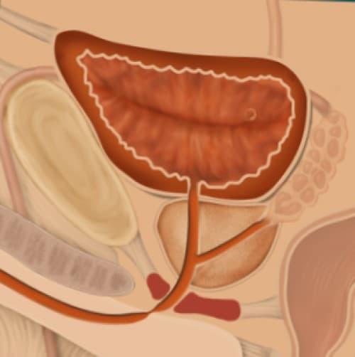 Striktur (Stenosis) Uretra