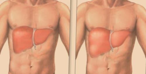 Gejala hepatomegaly