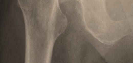Patah Tulang Panggul