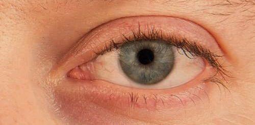 Penyebab mata kering