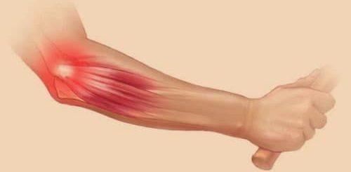 Gejala tennis elbow