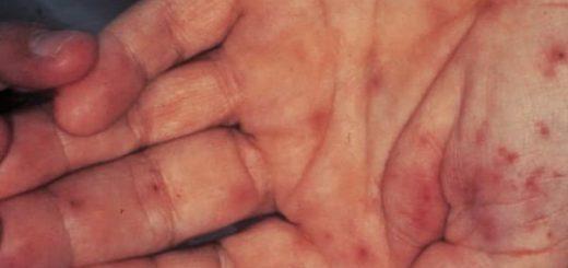 Gejala Endokarditis