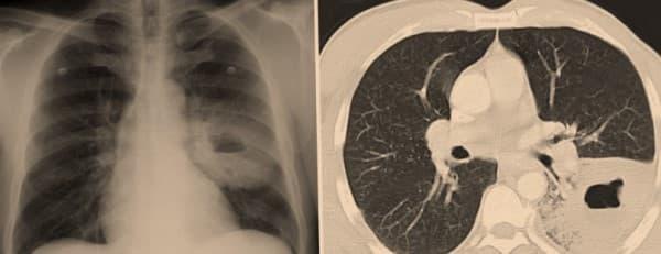 Gejala abses paru