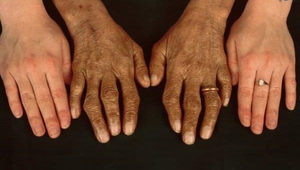 Gejala hemokromatosis