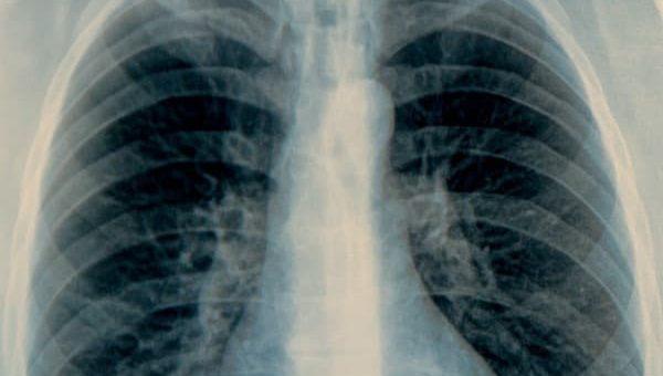 Hipertensi Paru