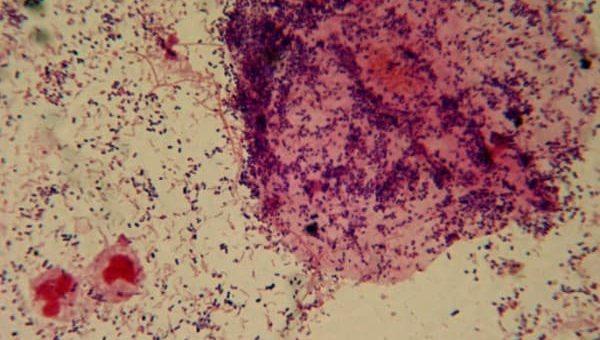 Bakteri vaginosis