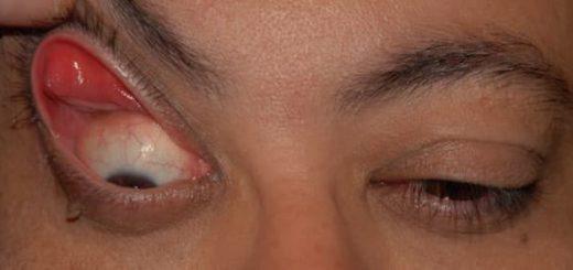 Kelopak mata jatuh