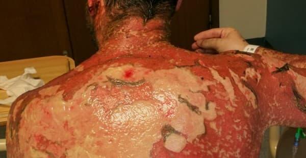 Toxic Epidermal Necrolysis