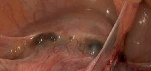 Retensi Placenta