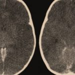 Edema Otak