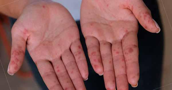 Penyakit Tangan, Kaki dan Mulut
