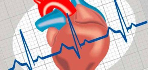 Gangguan Detak Jantung